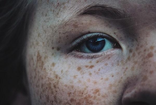 Sun age liver spot birthmark freckle removal sydney laser