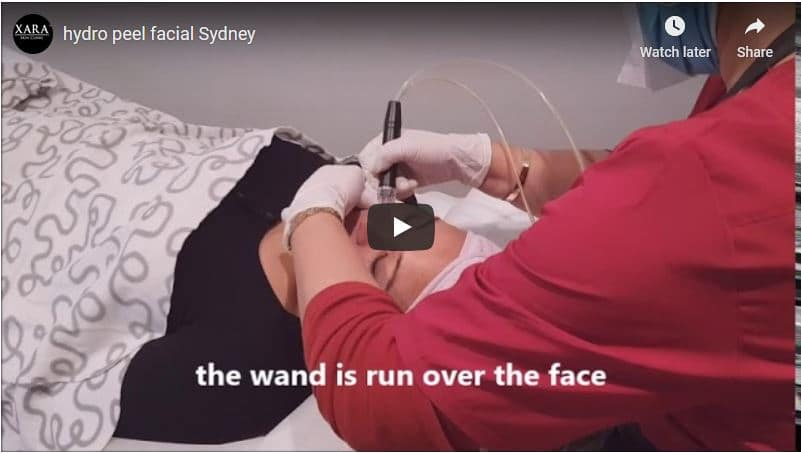 Carbon laser and hydro facial Sydney #1 best Xara Skin Clinic
