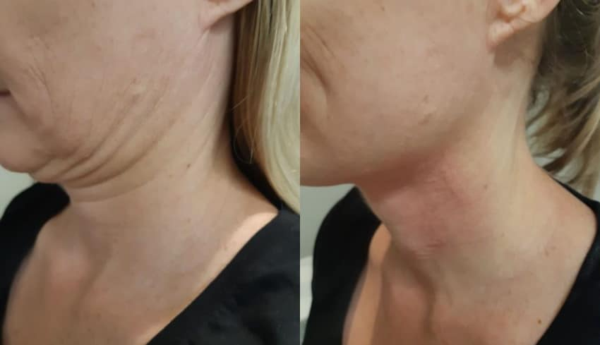 Laser clinic Sydney great treatments that help people #1
