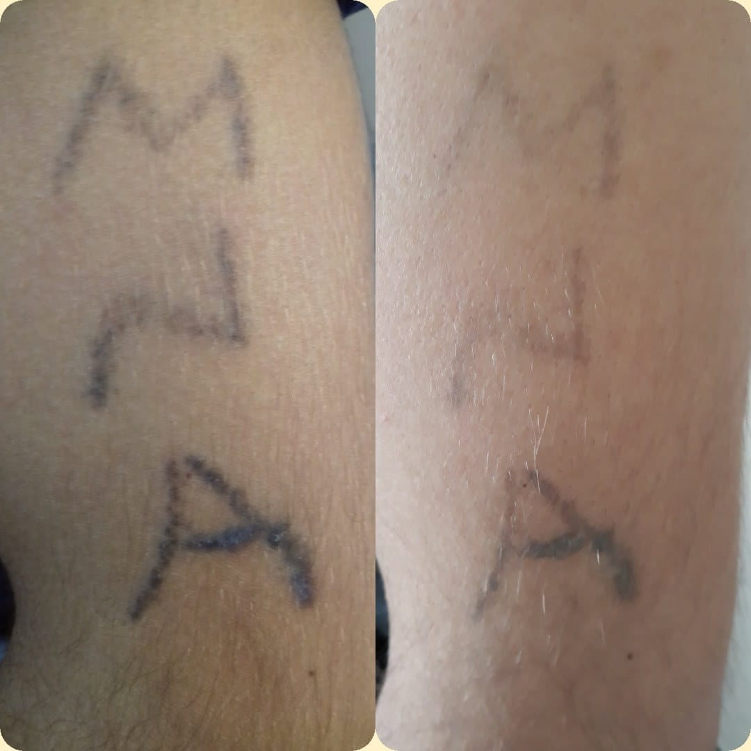 Amateurly administered tattoos verse professionally administered tattoos