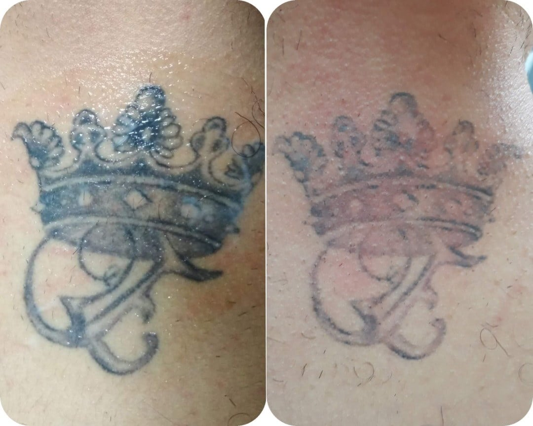 Picosecond laser tattoo removal Sydney #1 best treatment
