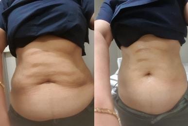 Ultrasonic cavitation Sydney for both men and women