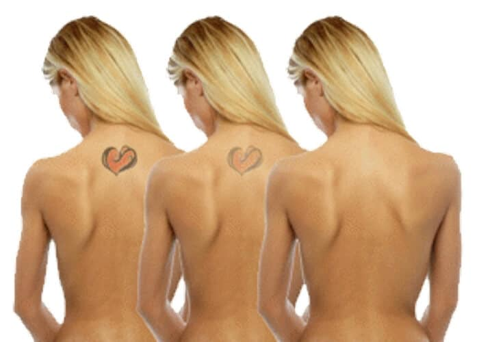 Painless laser tattoo removal Sydney #1 picosecond treatment