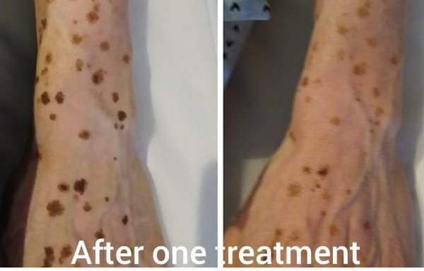 Picosecond laser pigmentation removal Sydney #1 safe effective